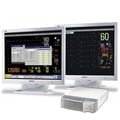 Philips IntelliVue MP90 - ECG and Multiparameter Monitor - Soma Technology, Inc.