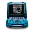 Sonosite Micromaxx Portable Ultrasound Machines - Soma Technology, Inc.