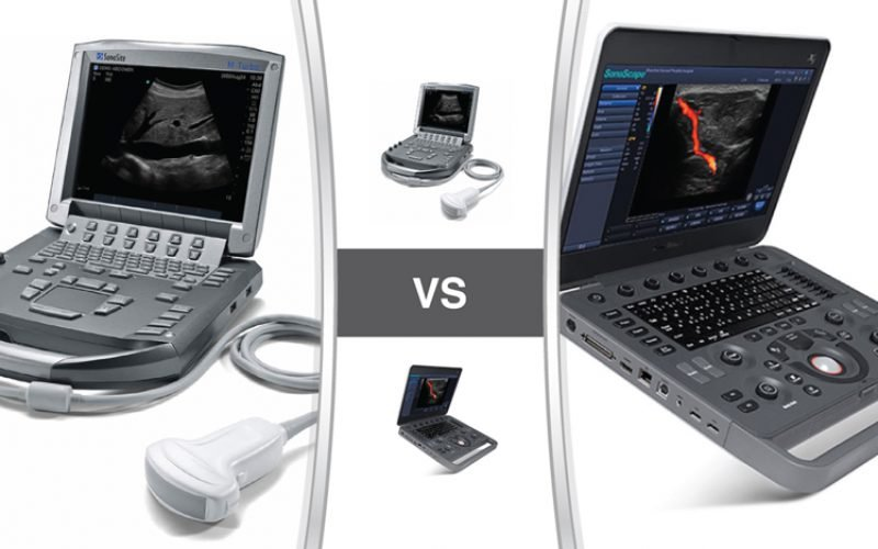 SonoSite M-Turbo VS SonoScape X5