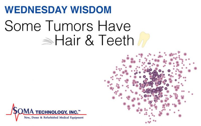 Wednesday Wisdom: Some Tumors Have Hair and Teeth