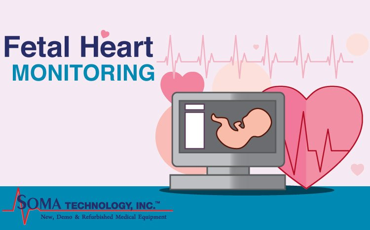 Fetal Heart Monitor - Soma Technology, Inc.