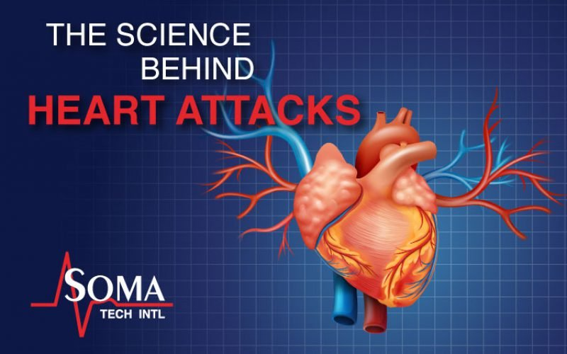 The Science Behind Heart Attacks