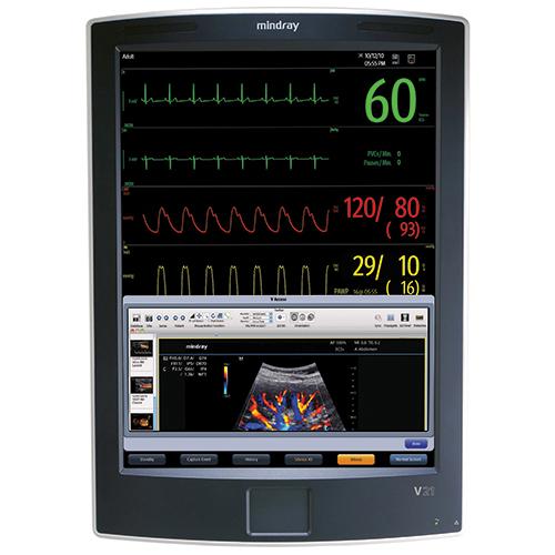 Mindray V21 - Monitores Multiparametros - Soma Technology, Inc.